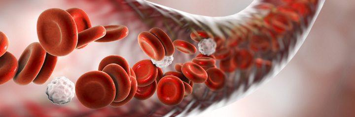 نصائح لمنع التعرض لتمدد الأوعية الدموية