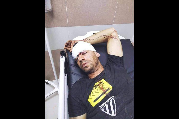 رام الله: إصابة سائق عمومي بحجارة المستوطنين