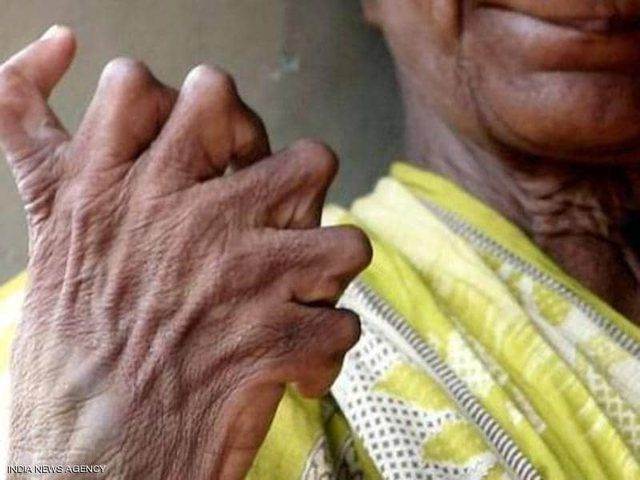 """سيدة هندية تروي معاناتها بسبب عيب """"كثرة الأصابع"""""""