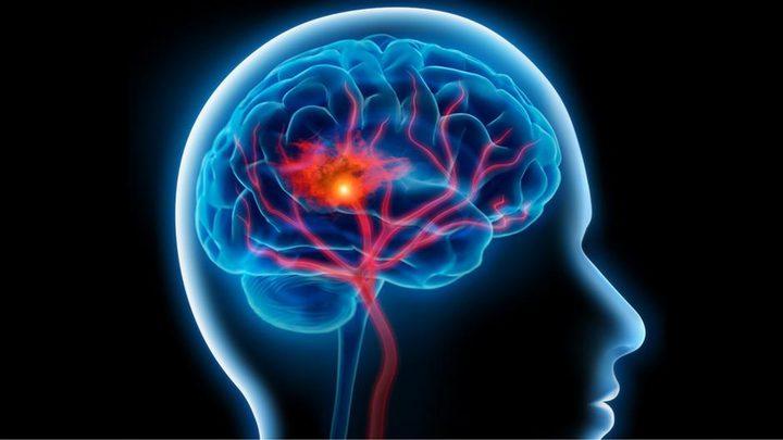 ما هي أنواع السرطانات التي تزيد خطر السكتات الدماغية ؟