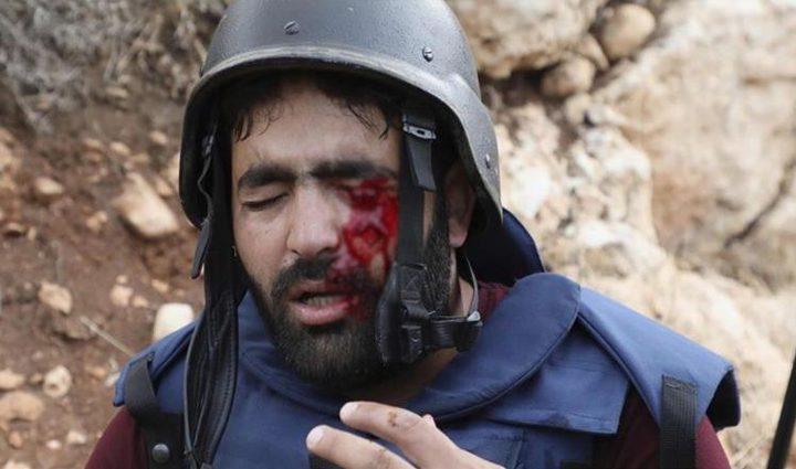 ترحيببدعوة الجنائية الدولية فتح تحقيق في الاعتداء على الصحفيين