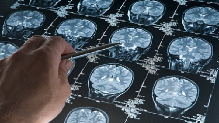 خطوة هامة نحو علاج مرض فقدان الذاكرة المدمر