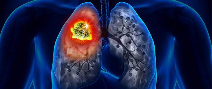 دراسة: مرضى سرطان الرئة الأكثر عرضة للاكتئاب