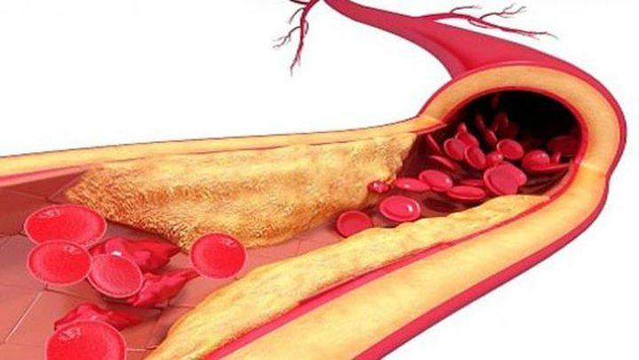 تحذير.. الدهون الزائدة في الدم قد تؤدي إلى تلف الأعضاء