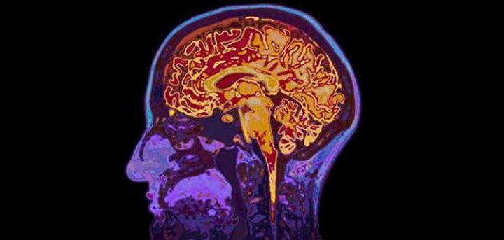 دراسة: حالات التهاب الدماغ تحدث بسبب فيروس ينقله الحيوان