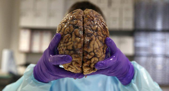 شاب روسي يجمد دماغ أمه لاعادتها للحياة!