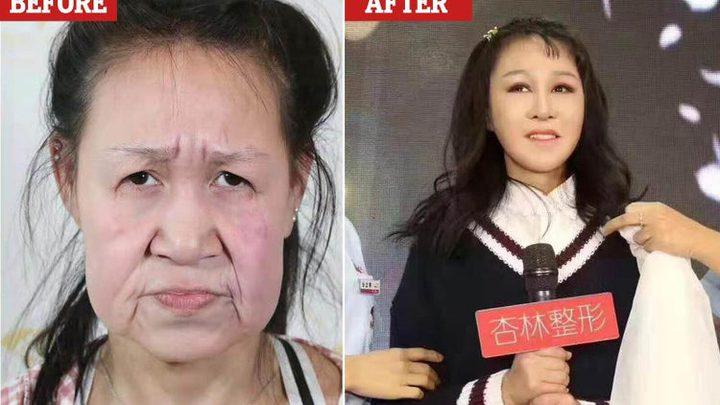 """الصين..مراهقة تجري عملية جراحية للتخلص من وجهها """"الستيني"""""""