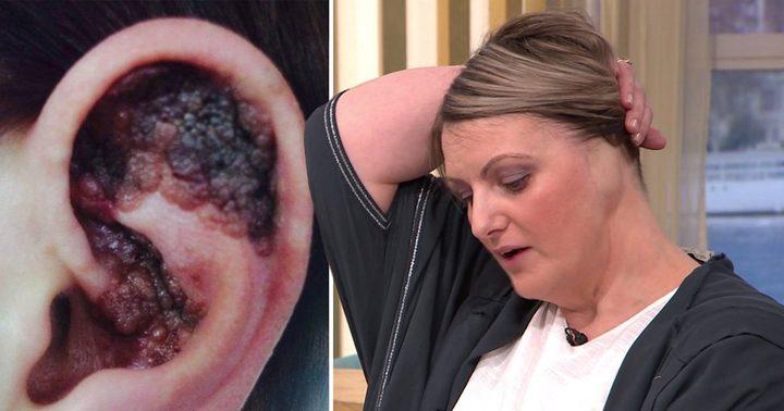 """سيدة بريطانية تخسر أذنها بسبب """"حمامات الشمس"""" !"""