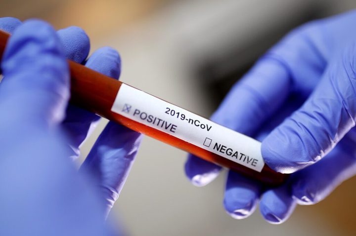 """بدء اختبارات """"الأجسام المضادة"""" لاكتشاف الحالات المصابة بكورونا"""