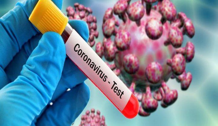 30% من المصابين بفيروس كورونا لا تظهر عليهم الاعراض