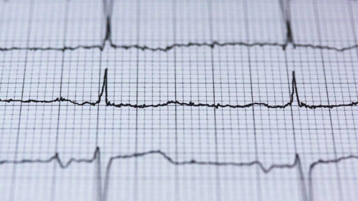 أي جزء من الجسم قد يتألم أثناء النوبة القلبية ؟