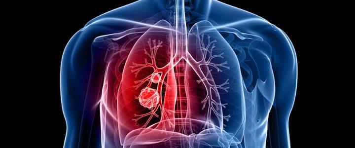 تعرفوا على العلامات النادرة التي تكشف إصابتك بسرطان الرئة