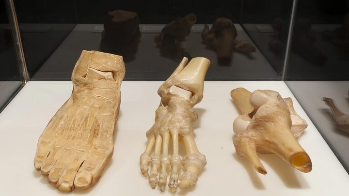 """ابتكار """"أسمنت"""" لترميم شقوق العظام"""