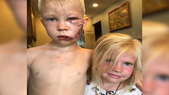 مواقع التواصل تتداول قصة شجاعة طفل أنقذ شقيقته من هجوم كلب شرس