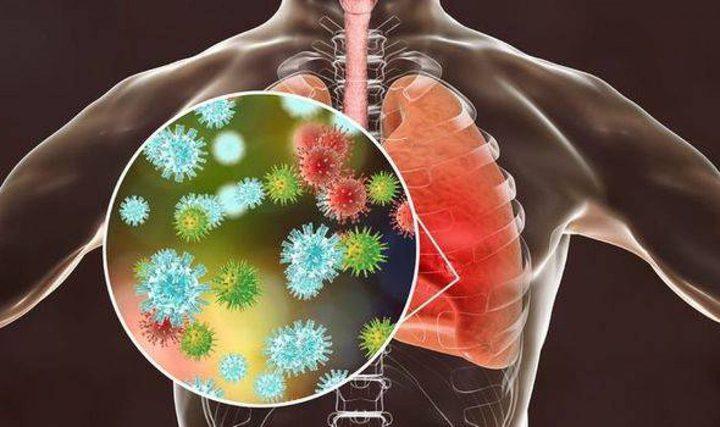 ابتكار دواء جديد يعيد إحياء قدرة الرئتين على مواجهة كورونا