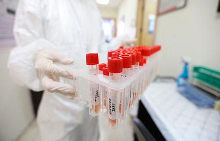 أربع إصابات جديدة بفيروس كورونا في سلفيت