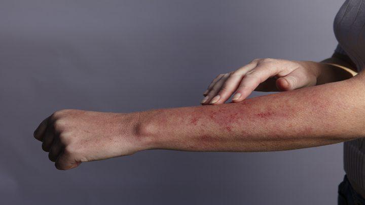"""آفات جلدية لدى مرضى """"كوفيد-19"""" قد تكون علامة على مشكلة صحية"""