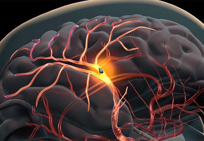 دراسة: أصحاب البشرة السوداء أكثر عرضة للسكتة الدماغية