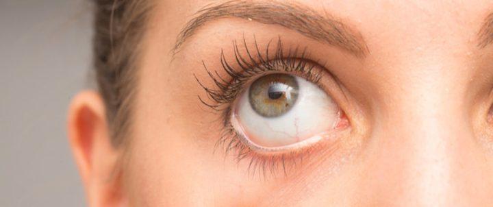 تحذير.. نقص هذا الفيتامين يؤدي لظهور زوائد رغوية في العين
