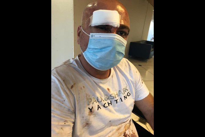 الطيبة: شرطة الاحتلال تعتدي على رجل بالضرب وتصيبه بجروح متوسطة