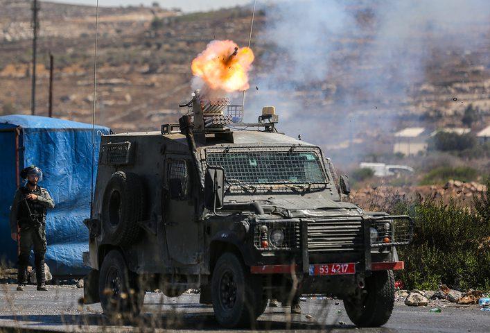  إصابات خلال مواجهات مع الاحتلال غرب طولكرم