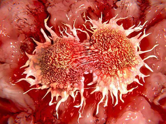 أبرز أعراض مرض سرطان الفم القاتل