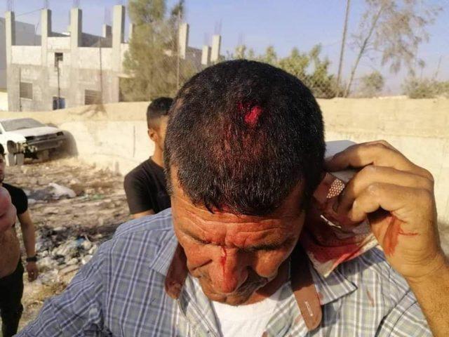إصابة مواطن جراء اعتداء للمستوطنين على قرية عصيرة القبلية