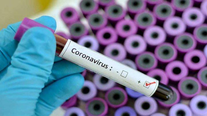 3 حالات وفاة و684 إصابة جديدة بكورونا