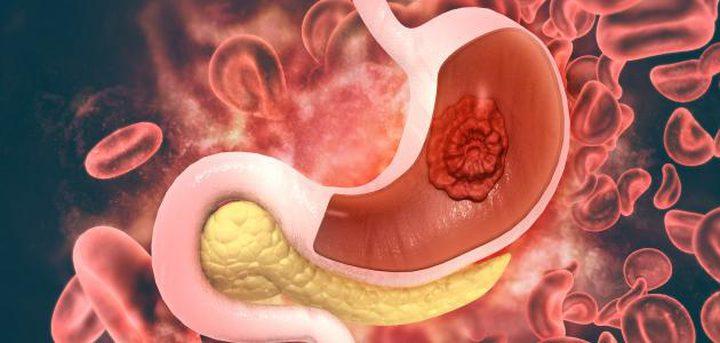 ما هي أعراض سرطان المعدة في المرحلة المبكرة؟