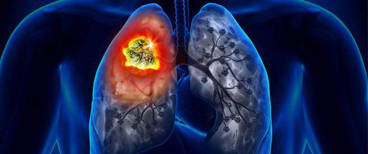 اكتشاف علاج جديد لمرض سرطان الرئة