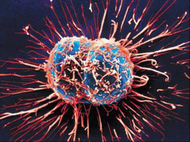 دراسة:  الخلايا السرطانية قادرة على السبات