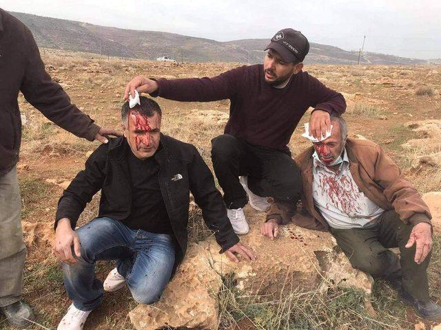 إصابة مواطنين جراء اعتداء المستوطنين على مزارعين شرق نابلس