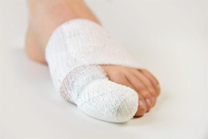 """طبيب: كورونا تسببت بتفشي """"جائحةأصابع الأقدامالمتكسرة"""""""