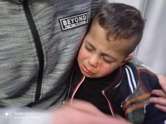رام الله: مستوطنون يصيبون طفلا جروح على مدخل قرية برقة