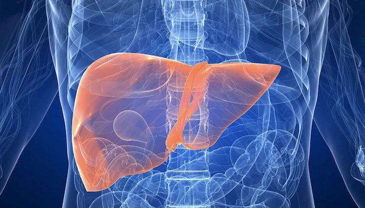 أعراض وكيفية علاج سرطان الكبد