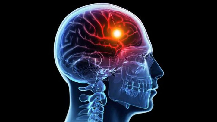 إشارات تنذر بإمكانية الإصابة بسكتة دماغية