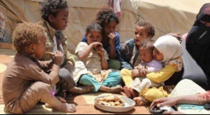 الأمم المتحدة: نصف أطفال اليمن سيعانون من سوء التغذية عام 2021