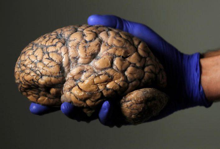 كيف يصل فيروس كورونا إلى الدماغ؟