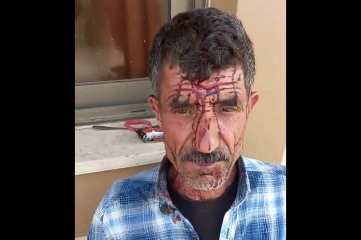 جنين: مستوطنون يعتدون على راعي أغنام ويصيبونه بجروح