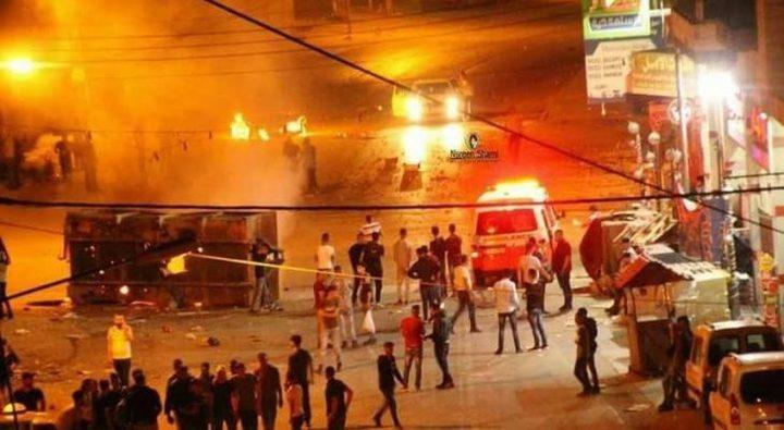 إصابة مواطنين بالرصاص و15 بالاختناق خلال مواجهات مع الاحتلال