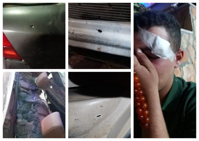 إصابة 3 مواطنين برضوض إثر اعتداء جنود الاحتلال عليهم قرب يبرود