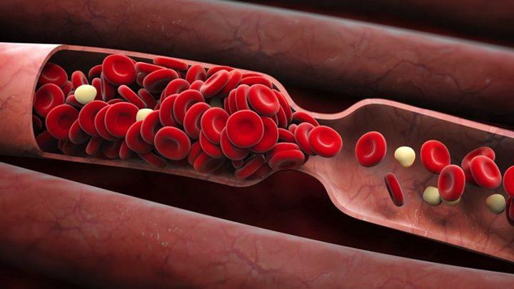 أعراض رئيسية يمكنها كشف الاصابة بتجلطات الدم