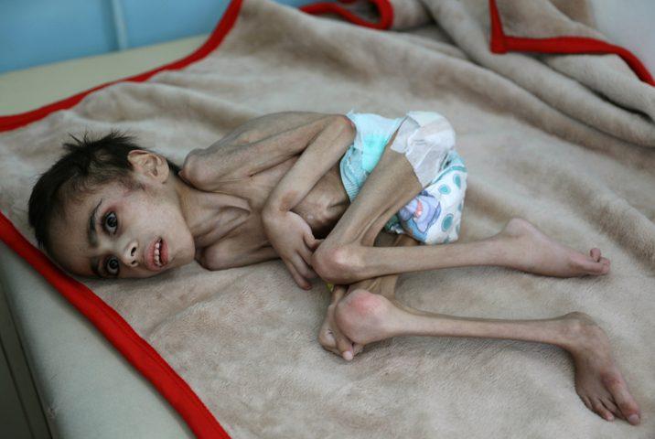 """""""أوكسفام"""": 11 شخصا في العالم يموتون جوعا كل دقيقة"""