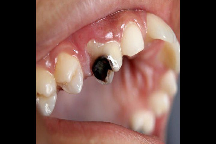 عادات شائعة تسبب تسوس الأسنان