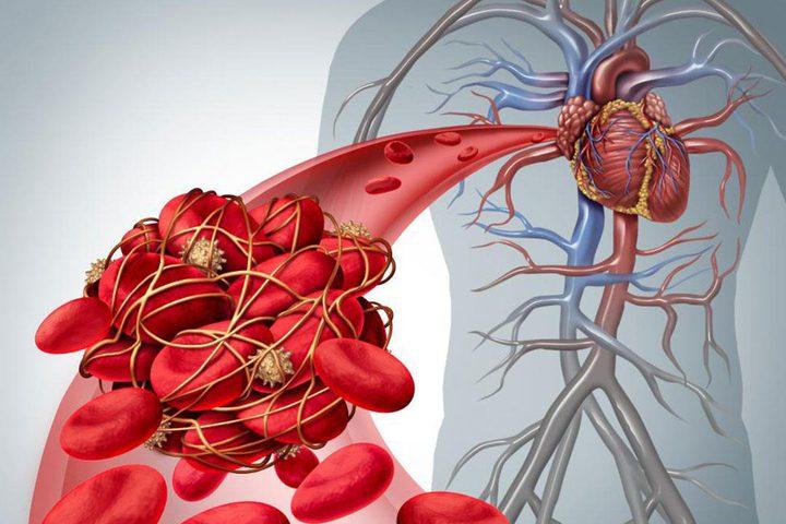 نصائح لتجنب تجلط الدم بعد الإصابة بكورونا
