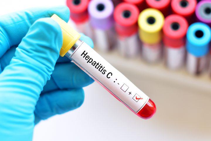 ما هي الأعراض التي تكشف إصابتك بفيروس سي ؟