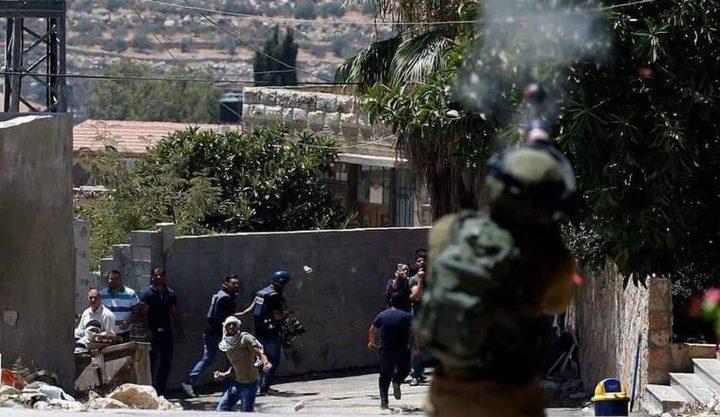 إصابة طفل برصاص الاحتلال خلال قمع مسيرة كفر قدوم