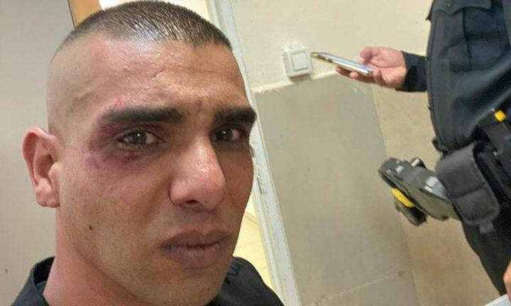 مستوطنون يعتدون بالضرب على شاب فلسطيني في الخضيرة