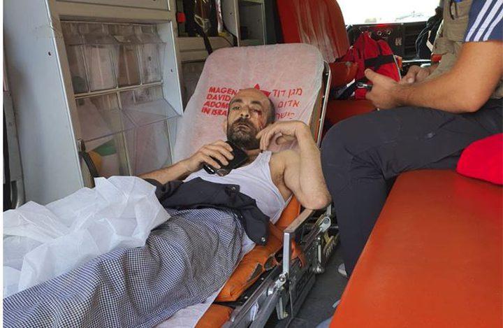 الاحتلال يعتدي على مواطنين في سلوان ويصيب أحدهم برضوض